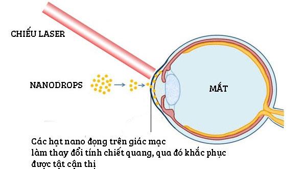 Phương pháp điều trị cận thị với nước nhỏ mắt Nanodrops