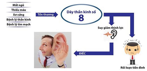 Dây thần kinh số 8 quyết định khả năng nghe của bạn.