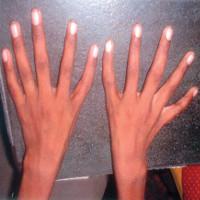 """Hội chứng """"tay người ngoài hành tinh"""" khiến ngón cái... biến thành ngón trỏ"""