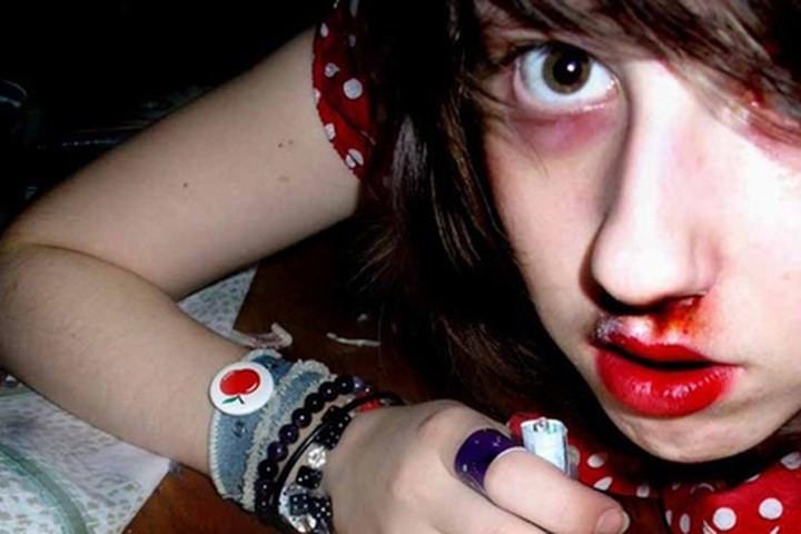 """Con nghiện """"đập đá"""" bằng cách hít thuốc qua đường mũi, họ rất hay bị chảy máu mũi."""