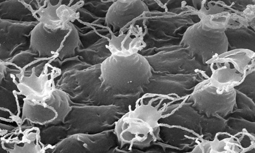 Bề mặt trứng của Macrobiotus shonaicus khi nhìn dưới kính hiển vi.