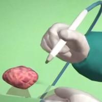 Video: Bút chẩn đoán ung thư trong 10 giây