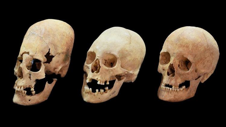 Hộp sọ bị kéo dài nhiều (trái) và ít (giữa) so với hộp sọ thường (phải) được tìm thấy ở Đức.