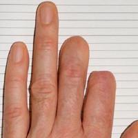 Bé gái 7 tuổi có khả năng tự mọc lại ngón tay không khác gì người Namek