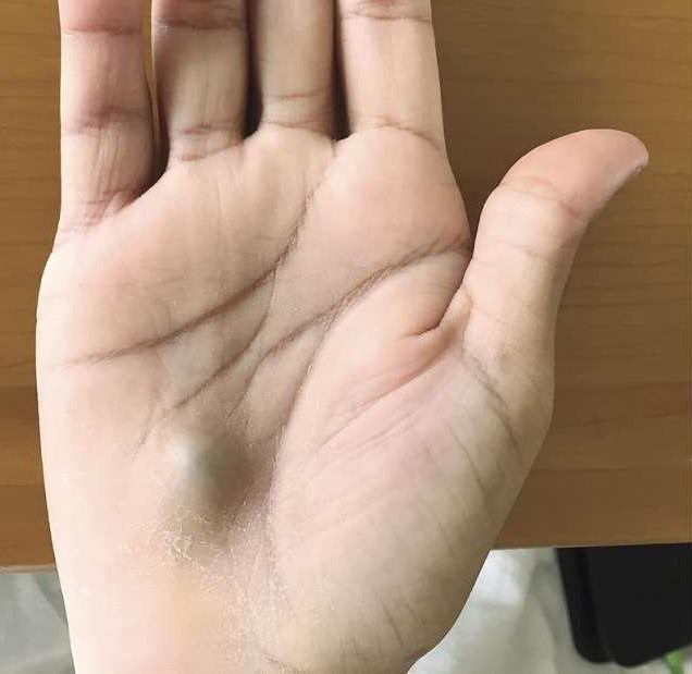 Cục bướu nhỏ ở lòng bàn tay, không ngờ là dấu hiệu của một căn bệnh cực kỳ nghiêm trọng.