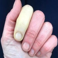 Ngón tay trắng bệch cảnh báo bệnh nguy hiểm