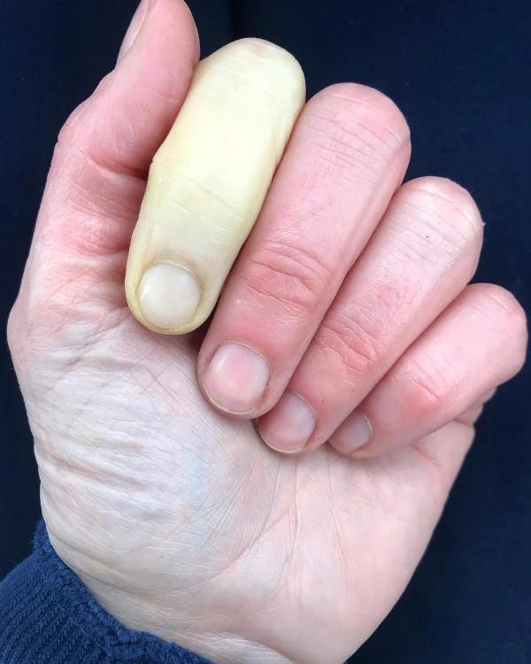 Hình ảnh ngón tay trắng bệch do bệnh Raynaud.
