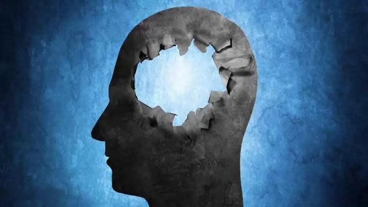 Có những trường hợp sinh ra không có não hay não cực kỳ nhỏ nhưng họ vẫn sống khỏe mạnh.