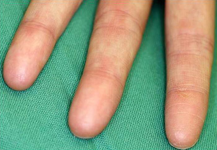 Người mắc hội chứng không có dấu vân tay