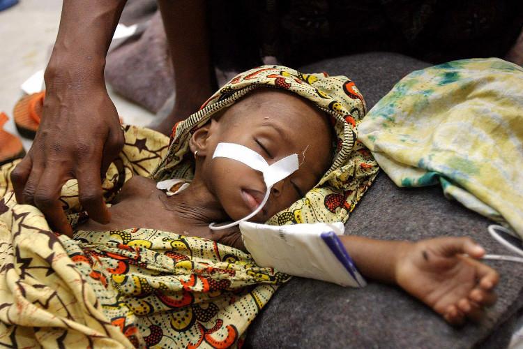 Bệnh nhân mắc bệnh sốt rét điều trị tại bệnh viện ở Monrovi, Liberia.