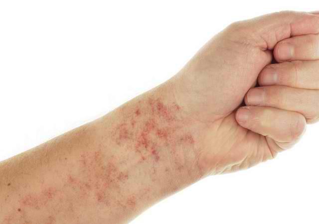 Bệnh nhân lupus nổi các chấm đỏ trên da do mạch máu bị rò rỉ.
