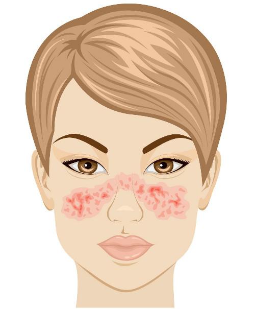 Vết phát ban hình con bướm cảnh báo nguy cơ mắc bệnh lupus.