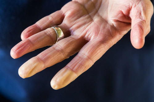 Ngón tay đổi màu do hội chứng Raynaud.