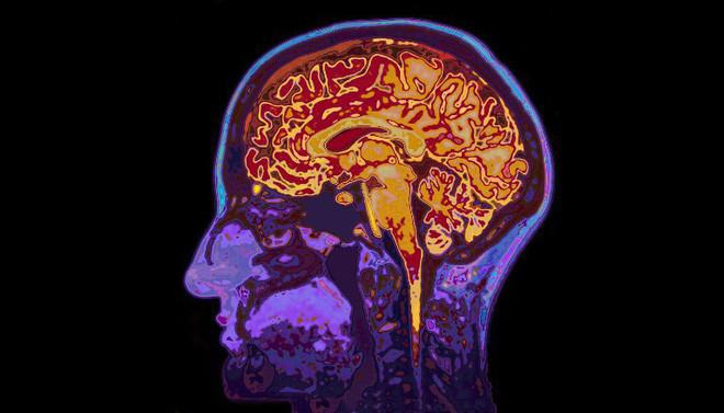 Hiện tượng vi chimera nam giới xuất hiện ở nhiều phần của não bộ.