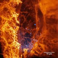 Lần đầu tiên, chúng ta thấy được hình ảnh về một tế bào di chuyển trong cơ thể sống