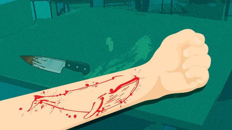 Mức độ khó tăng dần, người chơi sẽ phải tự tổn thương bản thân bằng cách rạch tay, khắc hình cá voi lên tay.