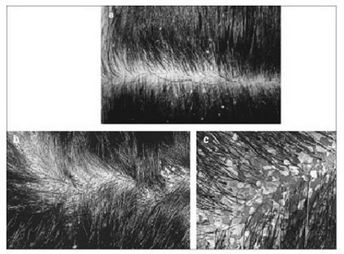 Tổn thương do nấm da đầu.