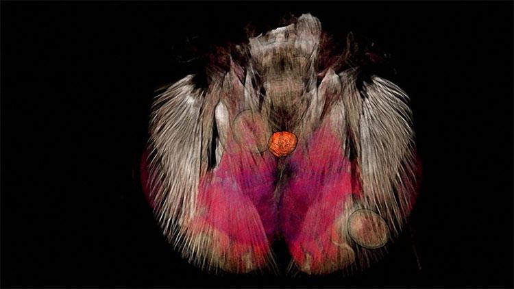 Bên trong đầu của một con kiến bị động vật ký sinh điều khiển.