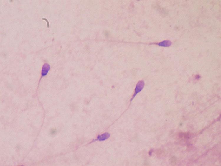 Cấu trúc tinh trùng có thể gây vô sinh, sẩy thai và dị tật bẩm sinh.