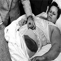 Người phụ nữ bị thiên thạch rơi trúng người