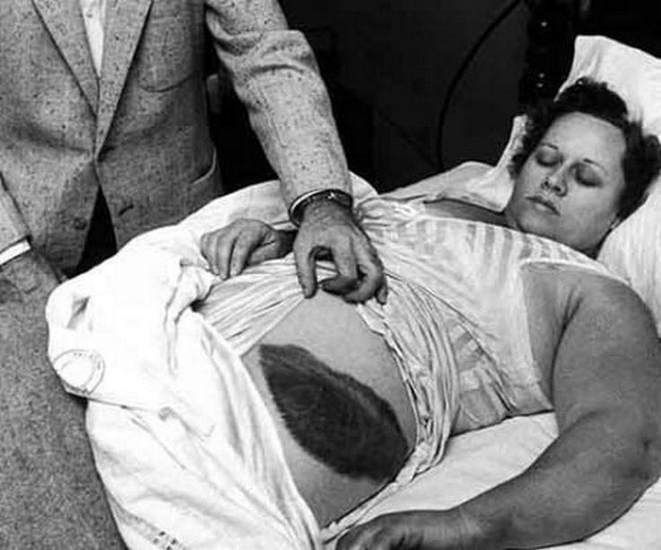 Bà Ann Elizabeth Hodges (1923 - 1972), người duy nhất thế giới bị thiên thạch đập trúng