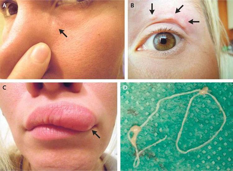 Người phụ nữ Nga nhận ra trên mặt mình có mọc một cục u rất nhỏ, tại phần mũi ngay dưới mí mắt.