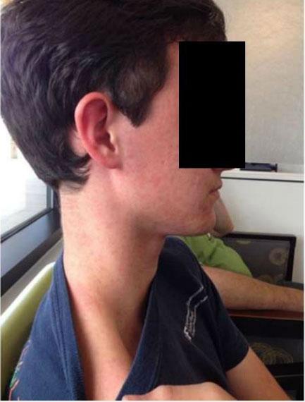 Cơ thể bệnh nhân 16 tuổi phát ban do virus Keystone