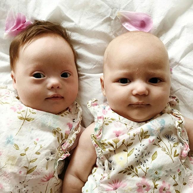 Dù là sinh đôi nhưng Harper (trái) mắc hội chứng Down còn Quinn hoàn toàn bình thường.