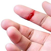 Nguyên nhân khiến một người mắc bệnh máu khó đông