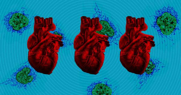 Tổn thương tim