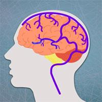 """""""Đông não"""" - hiện tượng tưởng lạ nhưng khối người đã từng trải qua"""