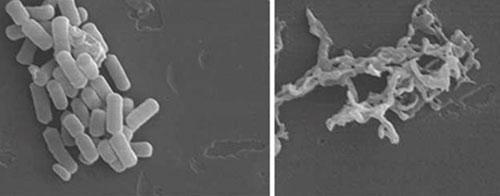 Màng tế bào của vi khuẩn E. coli bị phá huỷ khi tiếp xúc với plasma.