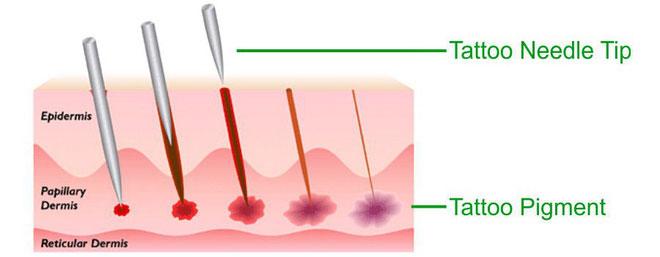 Việc xăm mình được thực hiện bằng cách sử dụng một máy xăm điện với kim nhanh chóng đâm qua lớp da.