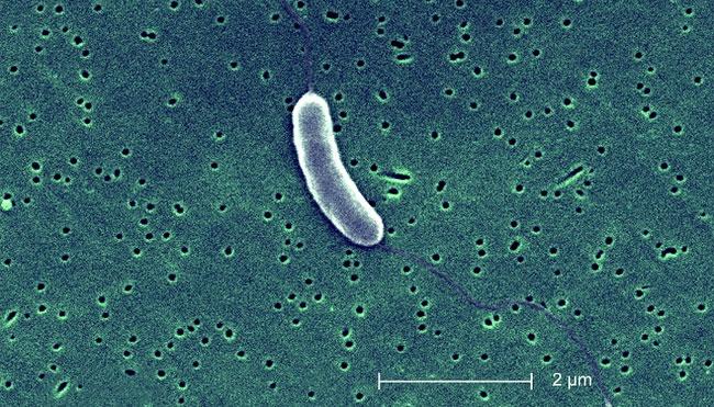 Vi khuẩn Vibrio dưới ống kính hiển vi.