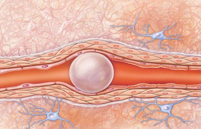 Bong bóng khí trong mạch máu.