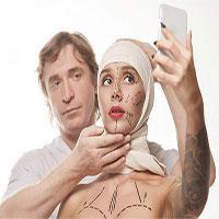 """Phẫu thuật thẩm mỹ giống ảnh selfie: Hiện tượng """"mặc cảm Snapchat"""""""