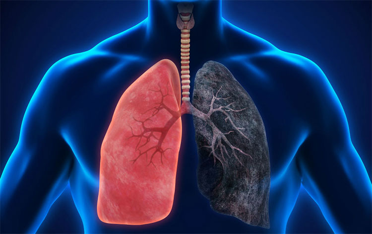 Những người có nguy cơ bị ung thư phổi nên tầm soát sớm kể cả khi chưa có triệu chứng.