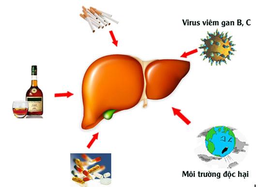 Các nguyên nhân gây bệnh xơ gan