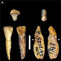 Dù không ăn đường, uống nước có ga nhưng người cổ đại vẫn bị sâu răng?