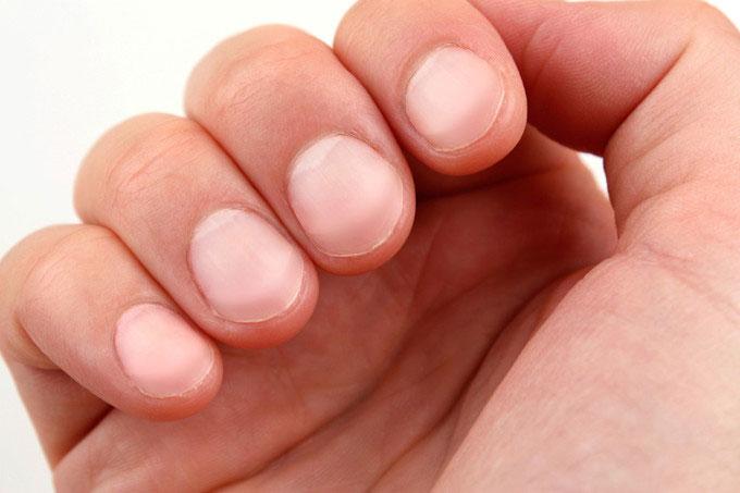 Màu sắc của móng tay cảnh báo nhiều bệnh tật.