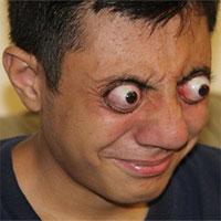 Thiếu niên có khả năng đưa nhãn cầu mắt lồi hẳn ra ngoài mà không hề hấn gì
