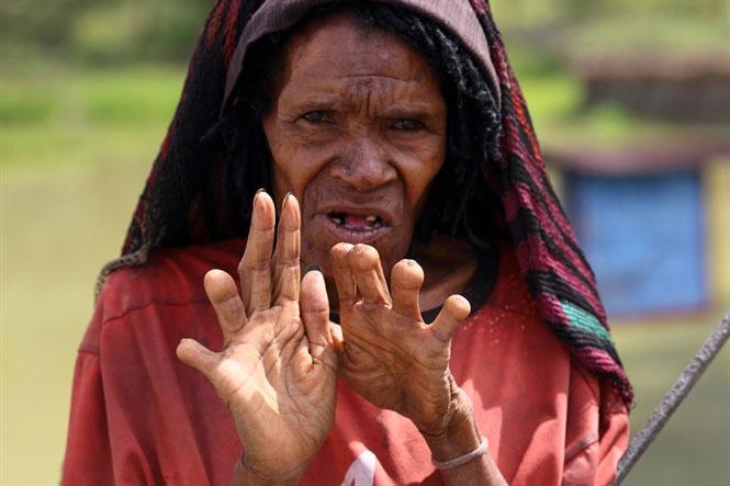 Người phụ nữ Danai này đã tự chặt tới 6 ngón tay để tưởng nhớ người chồng và các con đã chết.