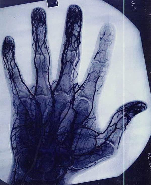 Đây là bức ảnh chụp mạch vành cho thấy tế bào mạch máu ở ngón trỏ người chơi yoyo bị hủy hoại thế nào.
