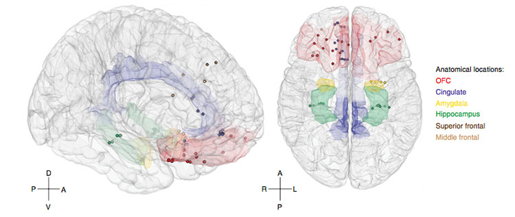 Các vùng não được các nhà khoa học Mỹ nghiên cứu