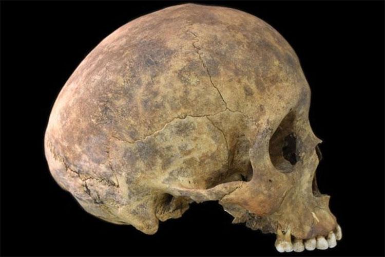 Chiếc sọ đầu lâu được phát hiện trong cuộc khai quật ngôi mộ cổ.