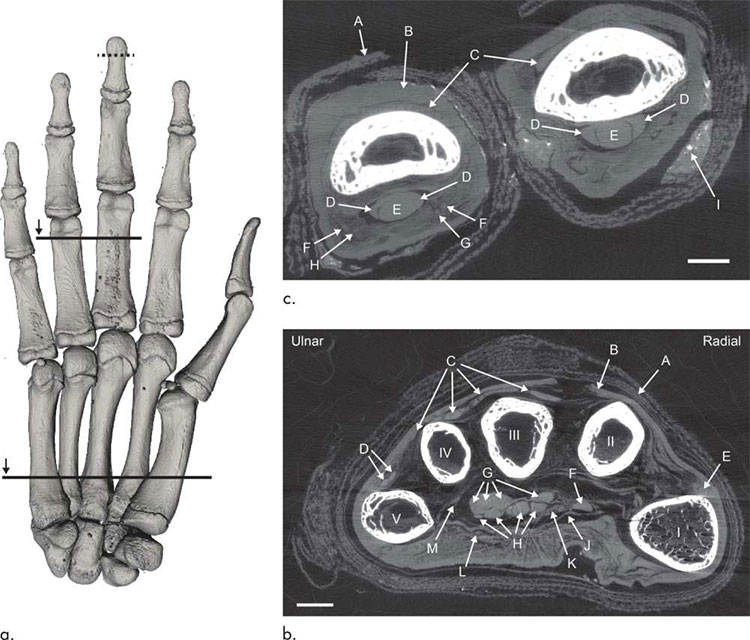 Hình ảnh chụp cắt lớp vi tính (CT) của bàn tay xác ướp.