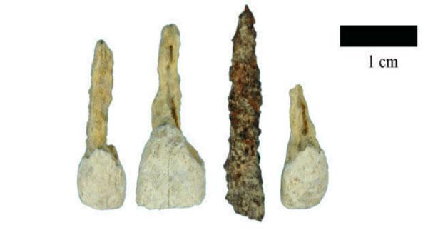 Chiếc răng giả làm bằng sắt được tìm thấy có niên đại 2.300 tuổi.