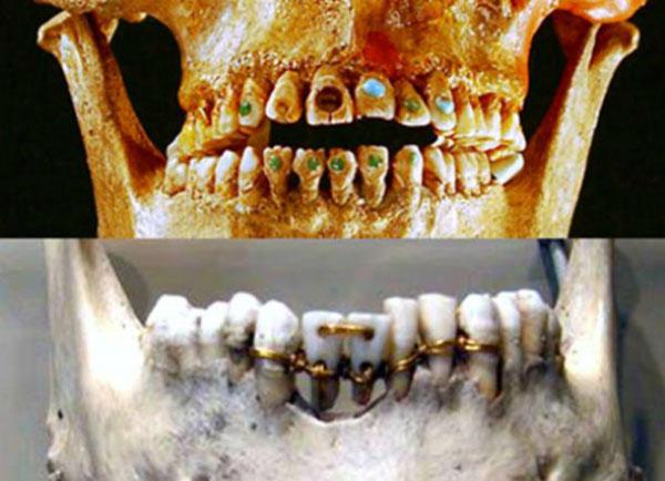 Răng nạm ngọc và răng xỏ dây vàng được thực hiện dưới bàn tay lành nghề của những thợ thủ công thời cổ đại.