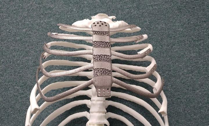 Các bác sĩ đã tái tạo lồng ngực thành công cho bệnh nhân.