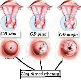 Các giai đoạn của ung thư cổ tử cung
